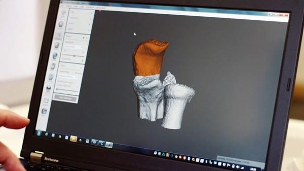 关键词:医疗健康领域应用,3D打印,功能性模型样品,3D打印技术,3d打印模型,3d打印服务,3D打印案例